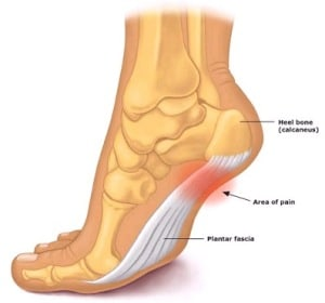 plantar-fasciitis-foot-diagram